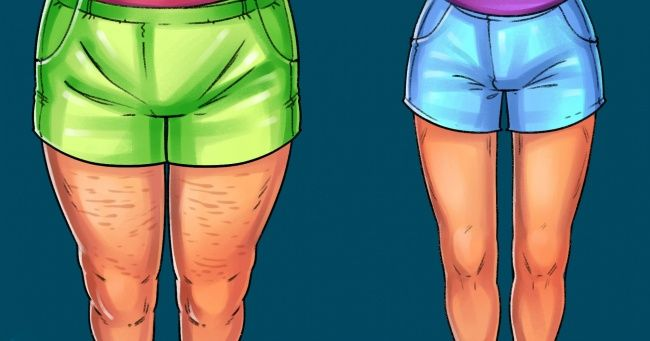 what-does-it-mean-to-dream-about-cellulite